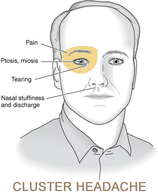 Cluster Headaches Australia Severe Head Pain In Temple